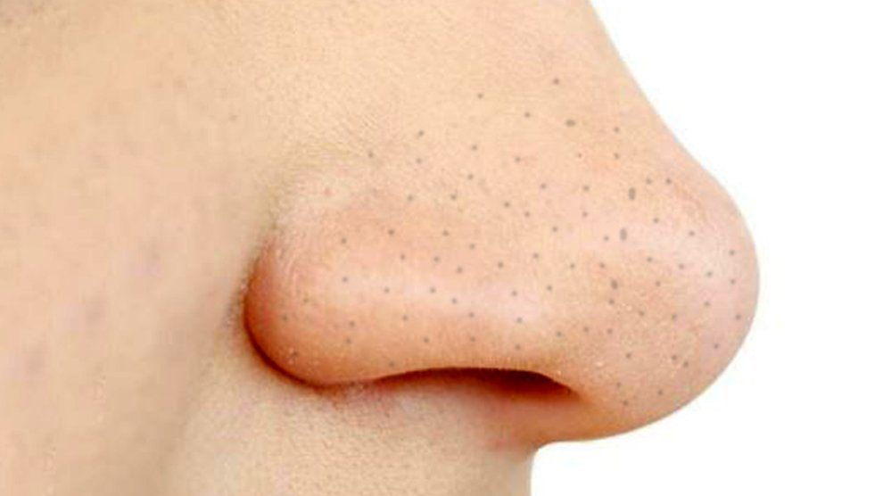 Blackheads Questions