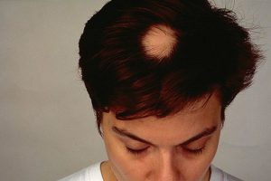 How To Treat Alopecia? Alopecia Areata FAQs