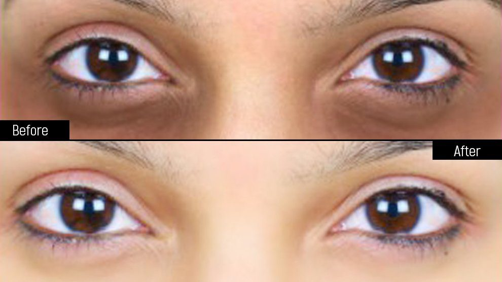 Under Eye Dark Circles Home Remedies