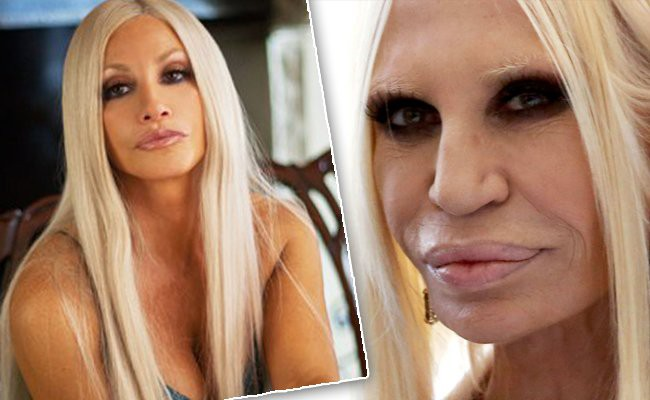 donatella-versace - 10 Unrecognizable Celebrities