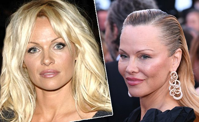 pamela-andersons - 10 Unrecognizable Celebrities