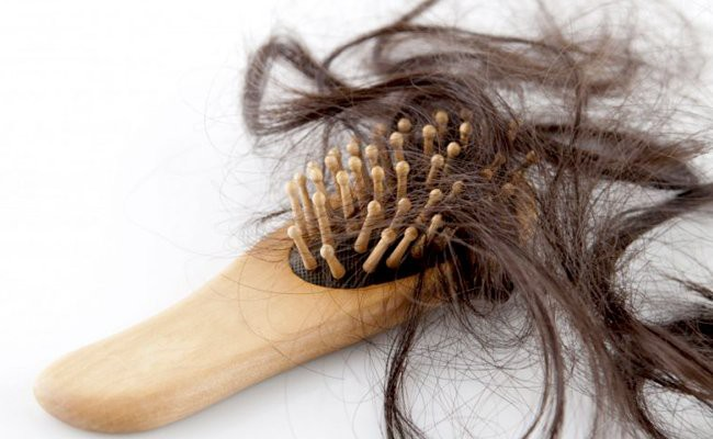 causes-of-hair-loss - Acupuncture For Hair Loss