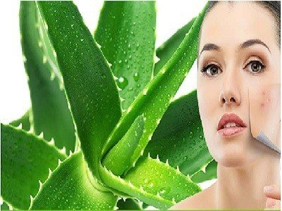 aloevera-for-acne