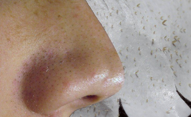 blackheads-removal-on-nose