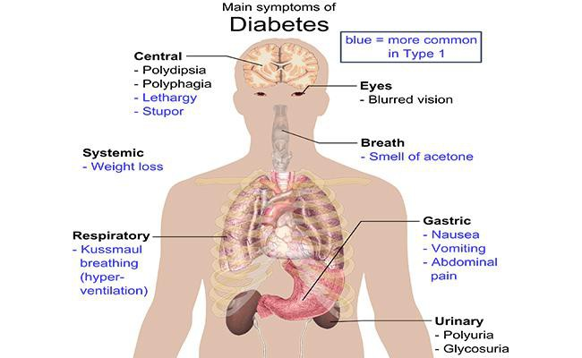 diabetes-symptoms-diabetes-facts-treatments