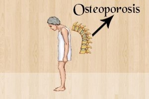 coffee-consumption-may-lead-to-osteoporosis