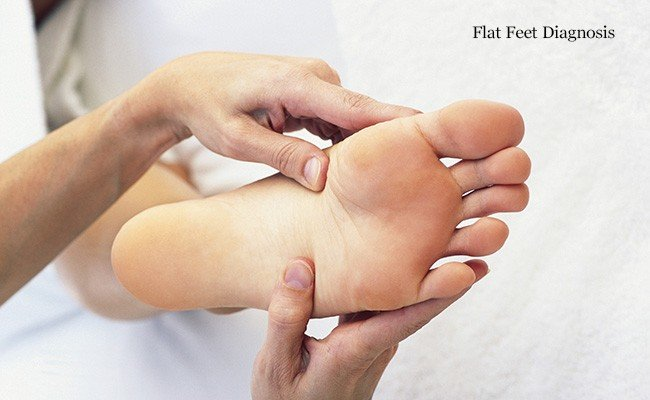 flat-feet-diagnosi