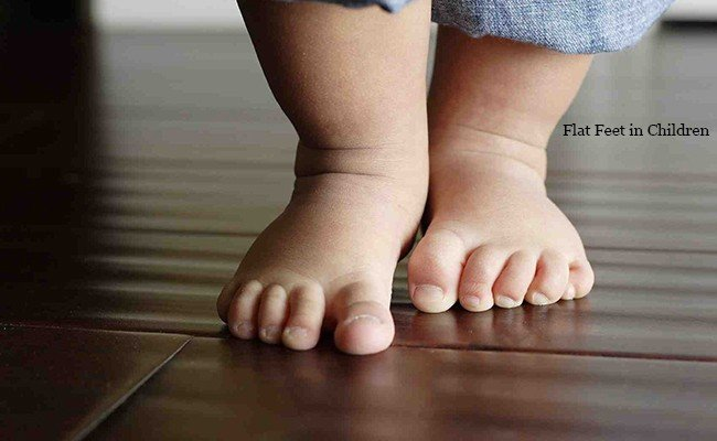 flat-feet-in-children