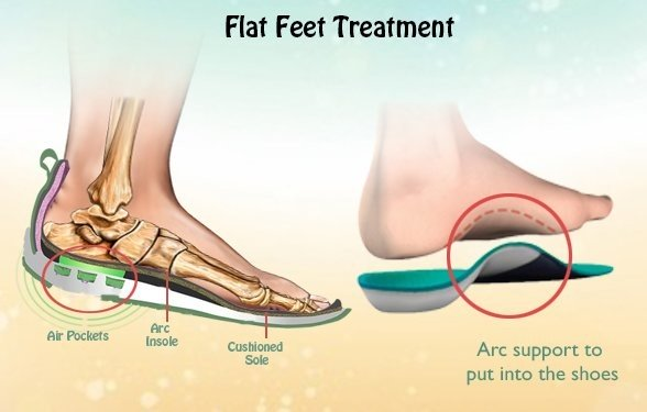 flat-feet-treatments