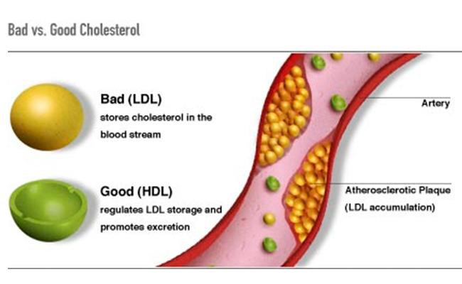 cholesterol-tests-health-checkups