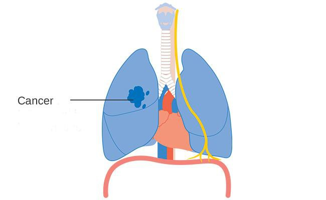 lung-cancer-cdt-lung-test-health-checkups