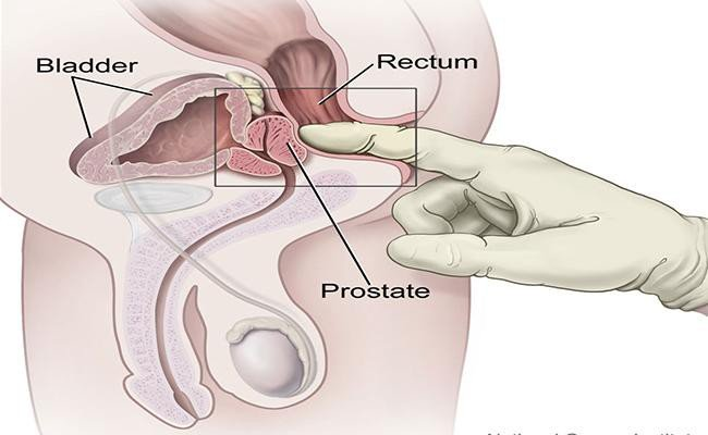 prostate-cancer-test-health-checkups