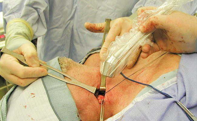 lymph-node-removal-lymphedema