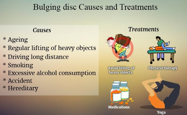 bulging-disc-causes-and-treatments