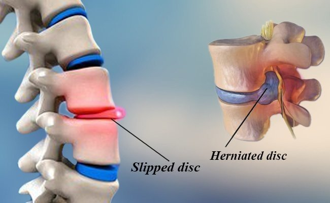 is-slipped-disc-and-prolapsed-herniated-disc-the-same