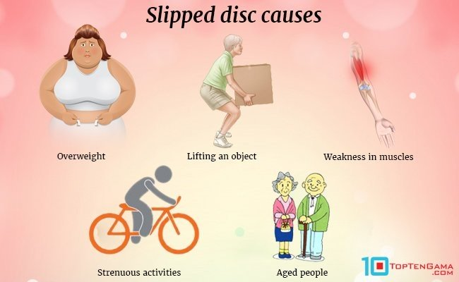 slipped-disc-causes
