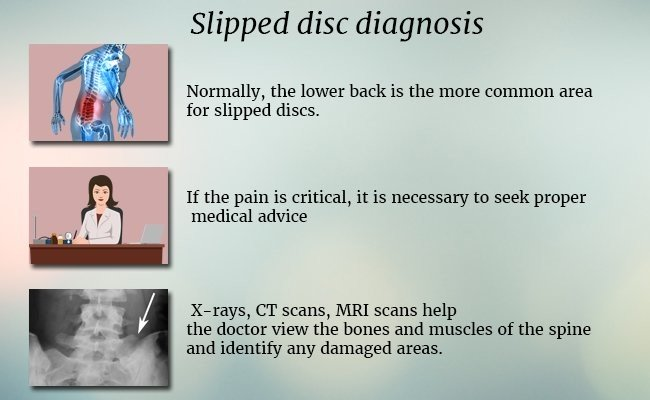 slipped-disc-diagnosis