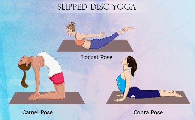 slipped-disc-exercise-or-yoga