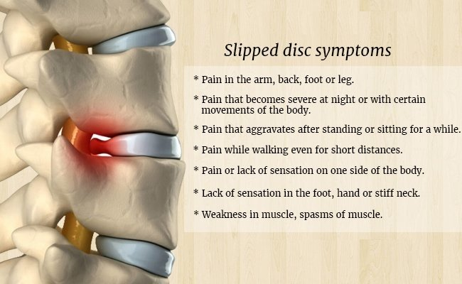 slipped-disc-symptoms