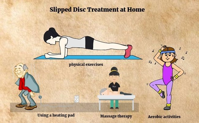slipped-disc-treatment-at-home
