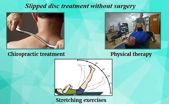 slipped-disc-treatment-without-surgery