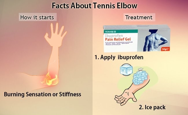facts-about-tennis-elbow