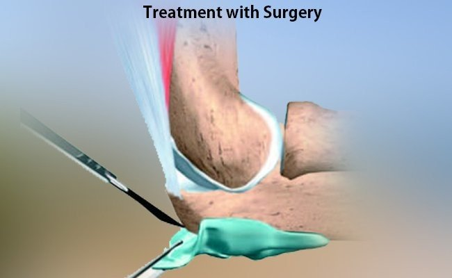 treatment-with-surgery
