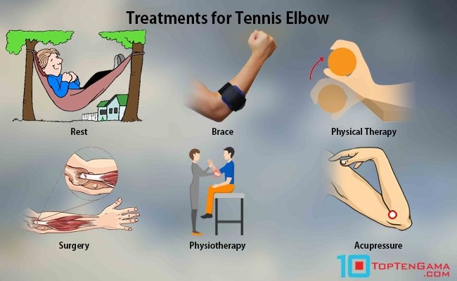 treatments-for-tennis-elbow